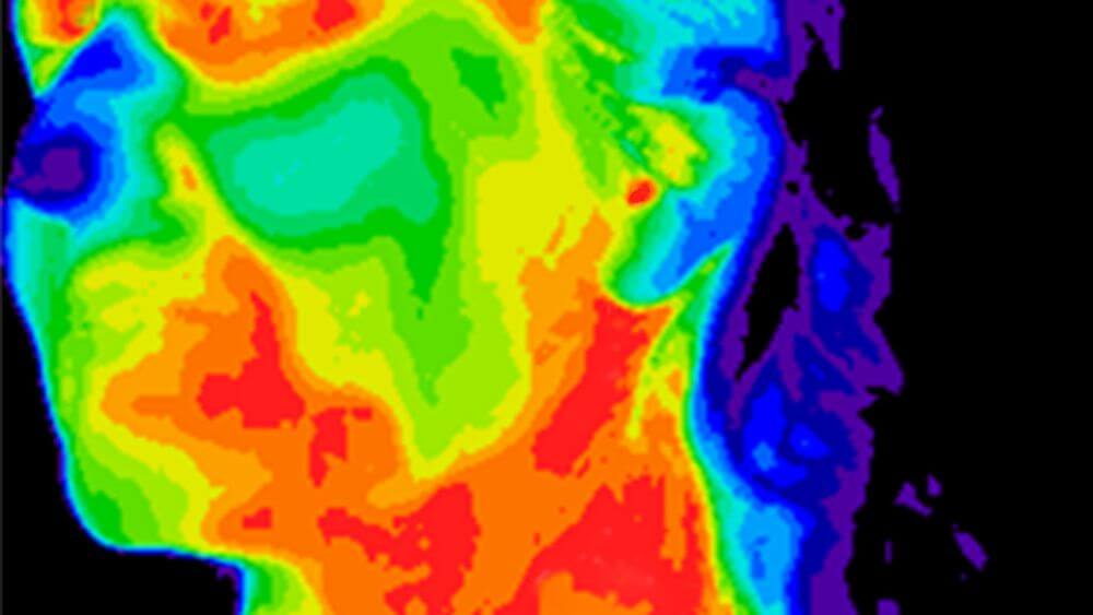 Regional Hyperthermia  – which temperatures are actually reached in deep-seated body tissue?